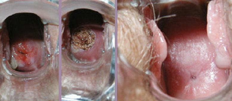 горячее отбеливание зубов с алиэкспресс отзывы